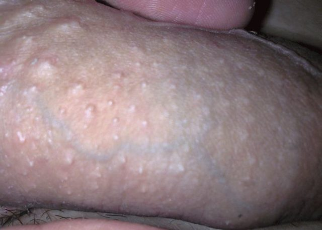 Pimples penile Penile Bumps