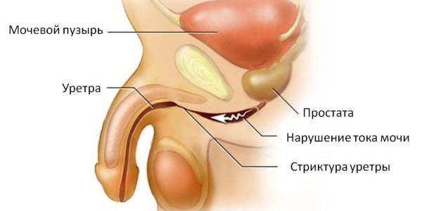 penis brænder under urinering