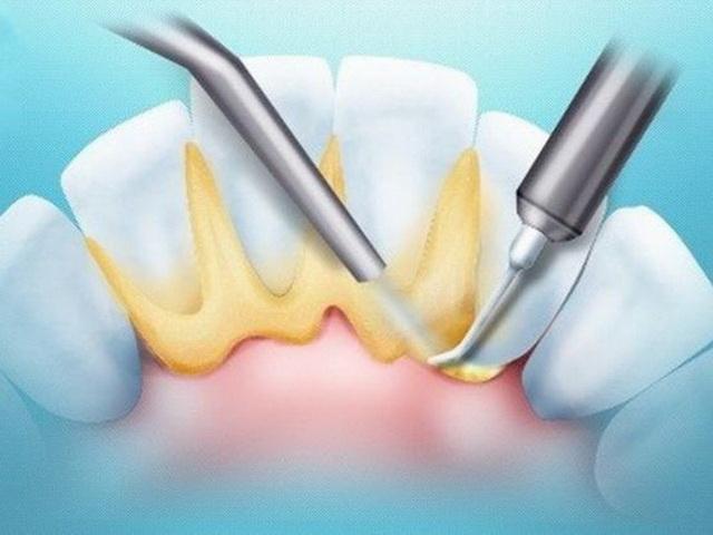 Важливо! «Раз на місяць рекомендується проводити заміну зубних щіток і  насадок для чищення 3dee00e17f3a2