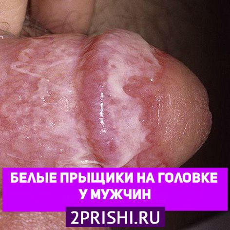 замечательный Порно фото в вагину допускаете ошибку. Давайте обсудим