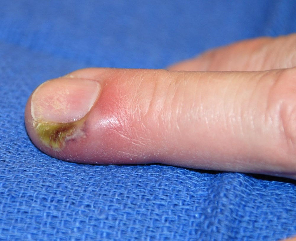 On the finger of the panaritium. Treatment at home is possible