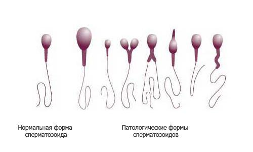 pathologische spermien