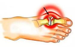 Gelenkentzündung (Arthritis): Formen, Ursachen, Symptome, Behandlung und Prävention