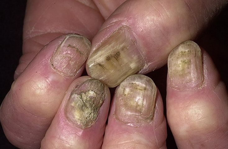 Under the finger of the thumb is a dark spot. The problem with nails ...