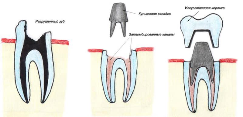 Вкладка и коронка на зуб цена