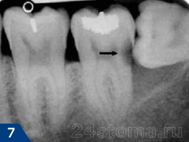 Weisheitszahn drückt gegen zahnfleisch