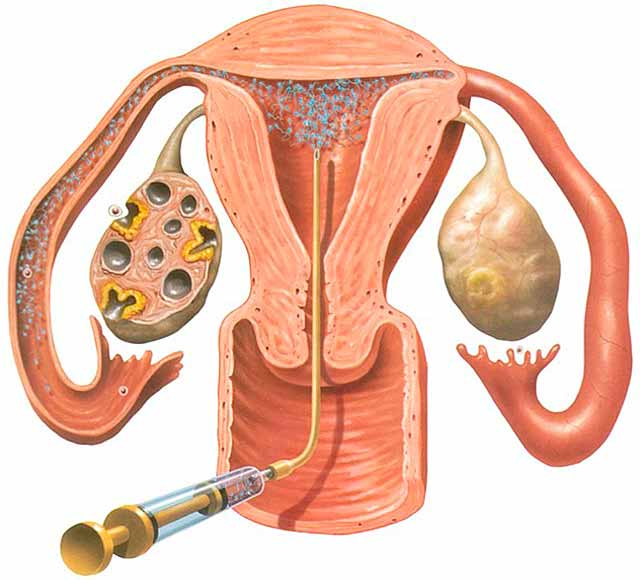 levedygtighed af sæd i kvindelige kønsorganer